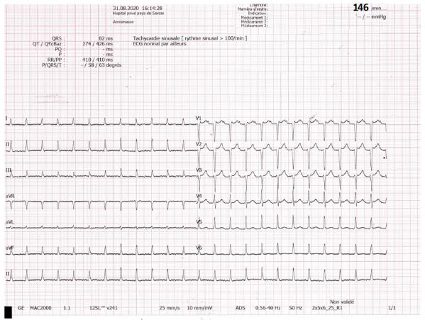 E.C.G. diagnostic