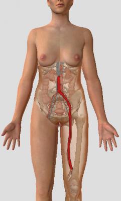 Modelisation du thrombus partiel
